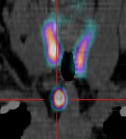 Scintigraphie des Parathyroides