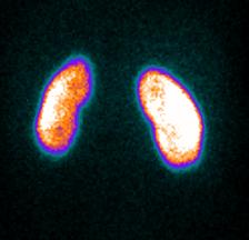 Indications de la scintigraphie renale au DMSA