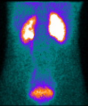 Indications de la scintigraphie renale au DTPA ou au Mag3