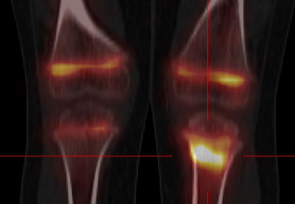 Indications de la scintigraphie osseuse