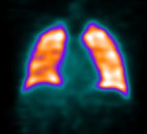 Indications de la scintigraphie pulmonaire